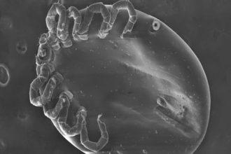 Haarbalgmilben (Demodex folliculorum) und ihre Mitbewohner, Bakterien vom Typ bacillus oleronius, können möglicherweise Rosazea verursachen, so das Ergebnis einer neuen Studie. Rosazea ist eine bakterielle Erkrankung der Haut mit Rötungen und Entzündungen im Gesicht.
