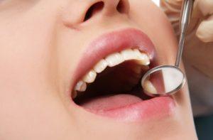 Homöopathie hat sich in der Bekämpfung entzündeter Nasennebenhöhlen bewährt.