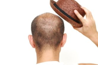 Hut- und Mütze-Tragen sind nicht ausschlaggebend für Haarausfall – vielmehr sind die Probleme vielschichtig und treffen Frauen sowie Männer gleichermaßen
