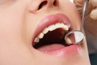 Amalgam gelangt aus Plomben durch Abrieb in unseren Körper und stört Stoffwechselprozesse. So kann es Vitamin B12-Mangel verursachen.