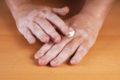 Bei der unheilbaren Autoimmunerkrankung, Vitiligo, auch Weißfleckenkrankheit, leiden die Betroffenen unter sichtbaren Hautauffälligkeiten.