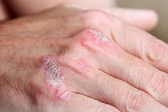 Laut einer Studie half Homöopathie Patienten besonders gut in den ersten drei Monaten der Psoriasis-Behandlung.