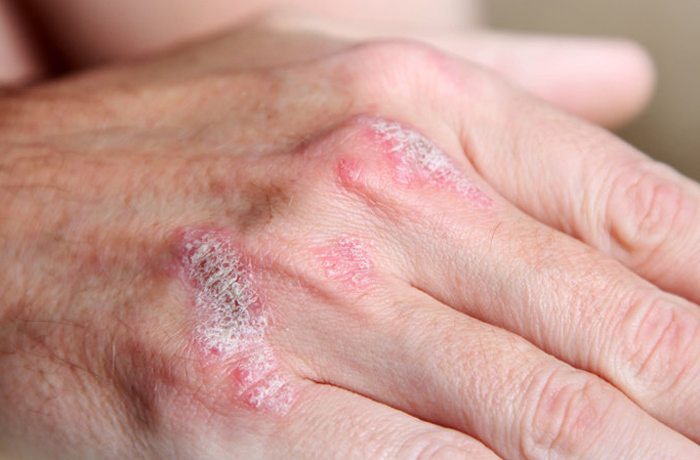 Laut einer Studie half eine homöopathische Behandlung Patienten besonders gut in den ersten drei Monaten der Psoriasis-Therapie.