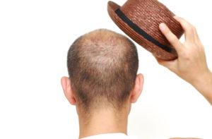 Vitamine, die vor Haarausfall schützen, sind zum Beispiel Folsäure sowie Vitamin A, C und E.